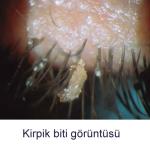 Kirpiklerde Bit Olabiliyor