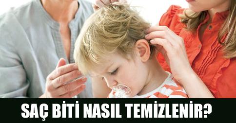 Saç Biti Çözümü